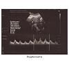 dopplerometrie