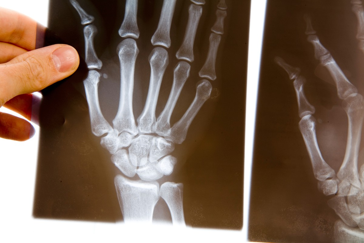 https://files.zdravotniregistr.cz/userdata/database/filesystem/category_photo/1/ortopedicka-ordinace/dreamstimeextralarge_1583718.jpg